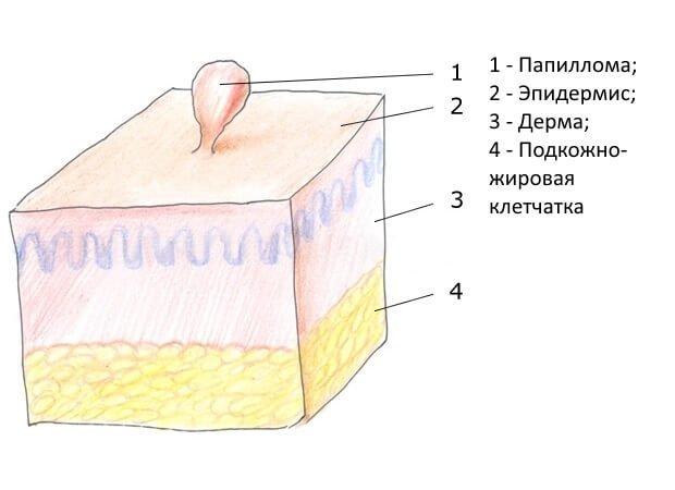 Схема папилломы человека