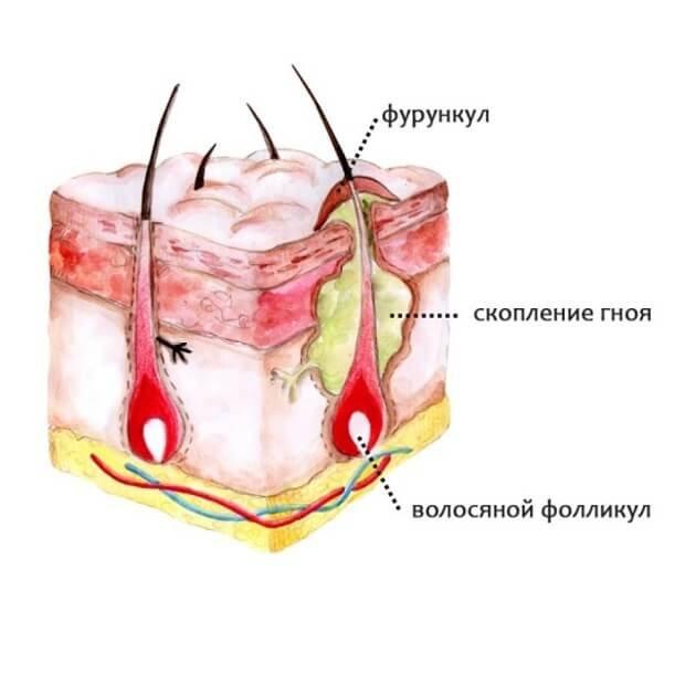 Схематическое изображение фурункула