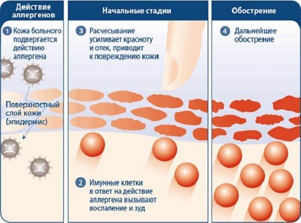 Схема распространения дерматита