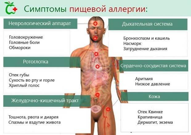 Симптомы пищевой аллергии