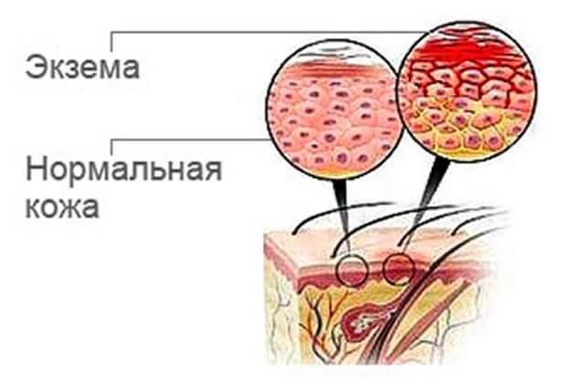 Сравнение экземы кожи