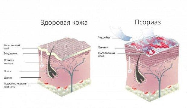 Сравнения кожи при псоризе
