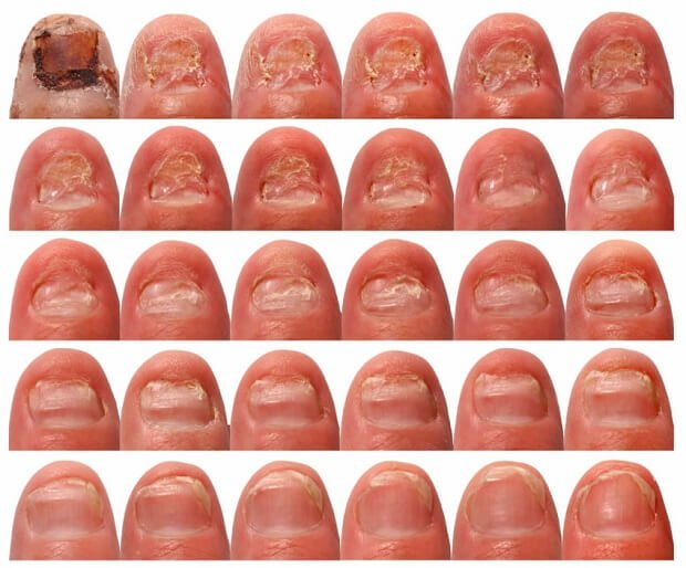 Стадии развития онихомикоза