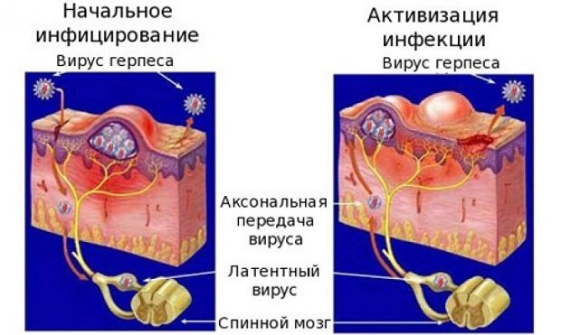 Аксональная активация вируса