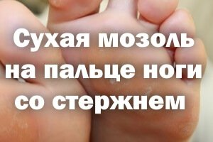Сухая мозоль на пальце