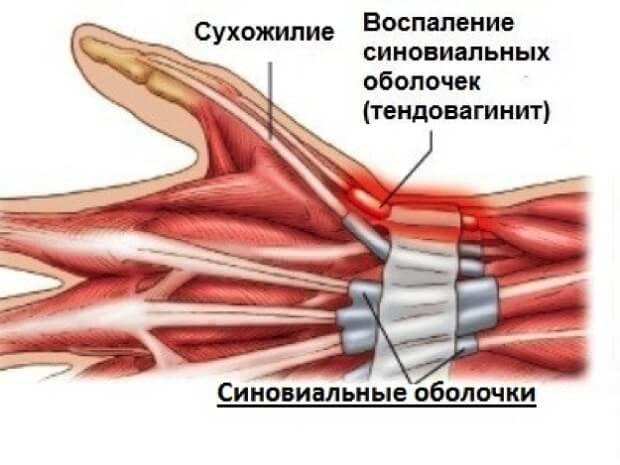 Тендовагинит руки человека