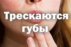 Трескаются губы