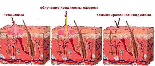 Удаление кондиломы у человека