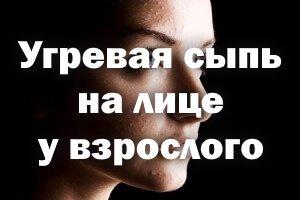 Угревая сыпь на лице у взрослого