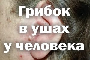Грибок в ушах у человека