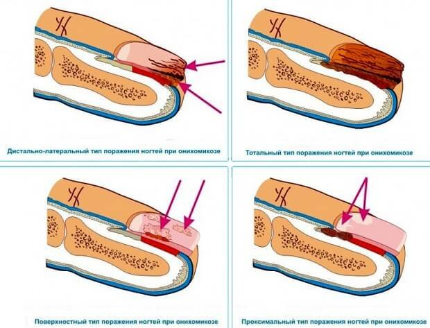 Чистотел для лечения грибка на ногах