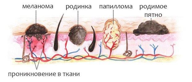 Вирус папиллом