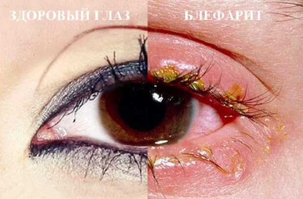 Воспаление глаза блефарит