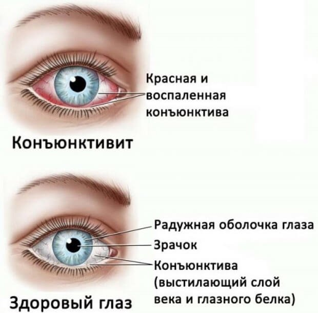 Воспаление глаза конъюнктивит