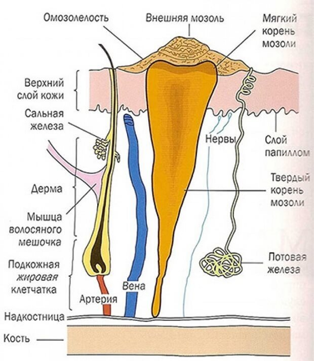 Чем лечить сухой мозоль на пальце ноги