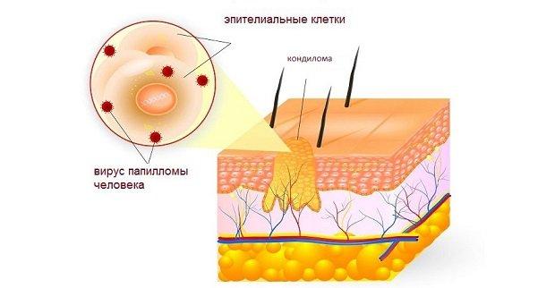 Папиллома на слизистой рта лечение