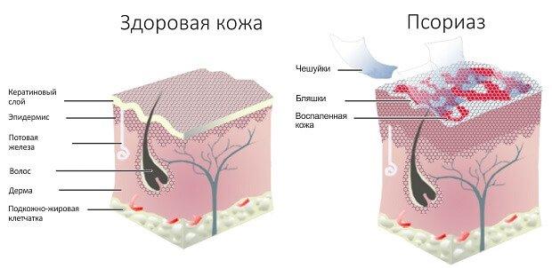 Псориаз у человека