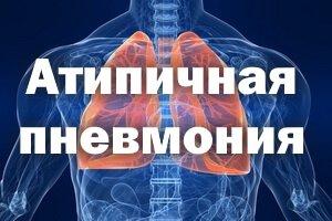 Атипичная пневмония у взрослых