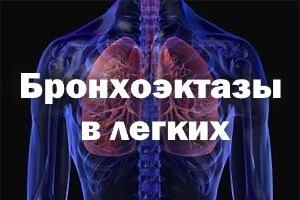 Бронхоэктазы в легких