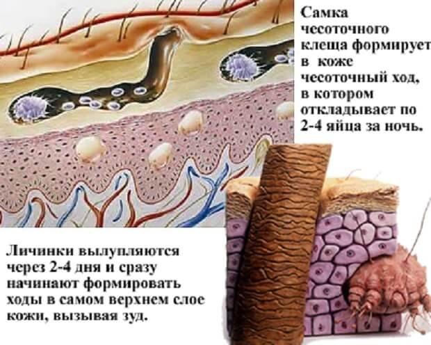 Чесоточный клещ под кожей