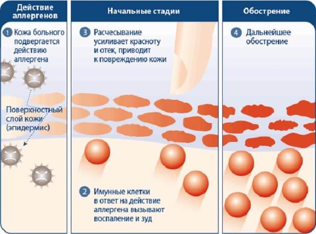Действия аллергенов на клетки