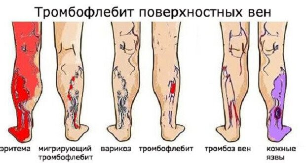 Эритема ног человека