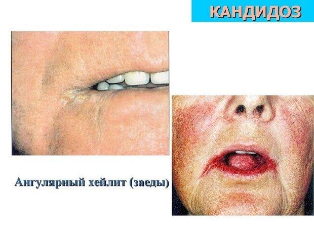 Хейлит человека губах