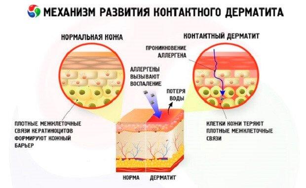 Контактный дерматит на руках лечение