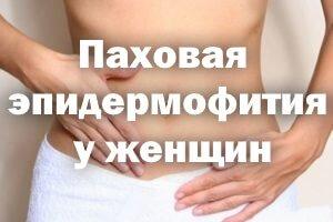 Лечение паховой эпидермофитии в домашних условиях 953