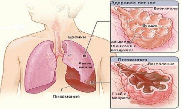 Полисегментарная пневмония легкого