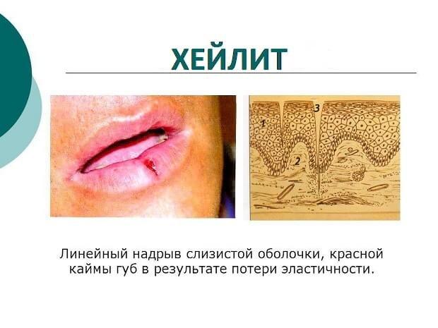 Поражение оболочки губ