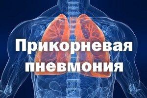 Прикорневая пневмония
