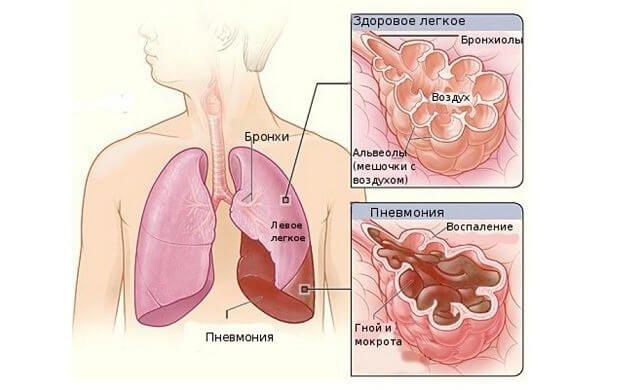 Воспаленная альвеола