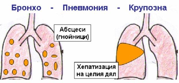 Разновидности пневмонии
