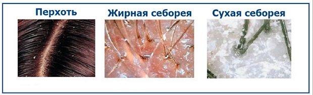 Разновидности себореи кожи