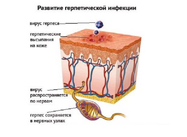 Развитие герпетической инфекции