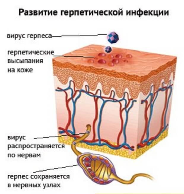 Развитие инфекции герпеса