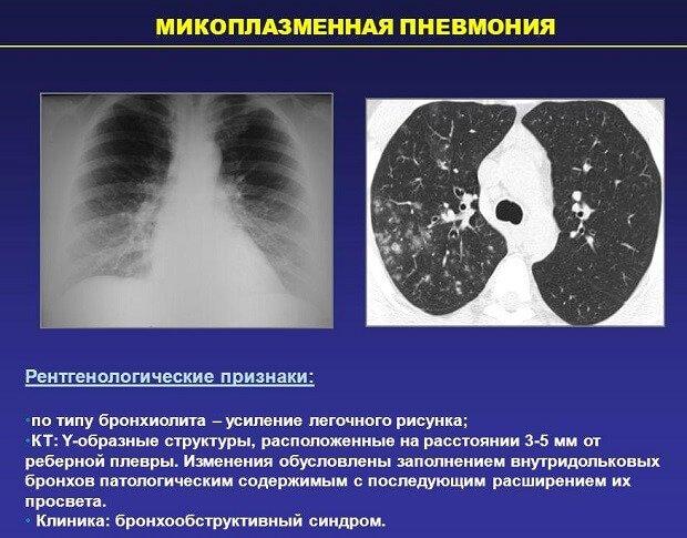 Рентгенологические признаки