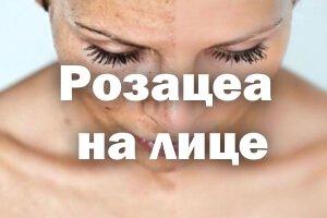Симптомы чумы у человека фото признаки и лечение