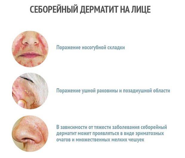 Себорейный дерматит лице