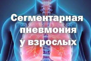 Лечение сегментарной пневмонии у взрослых