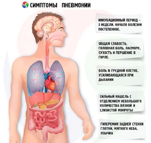 Симптоматика воспаления легких