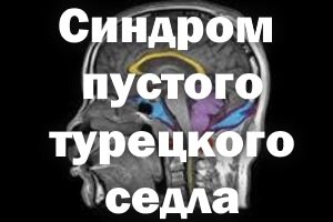 Голова на разрезе