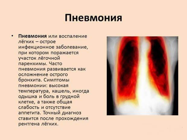 Сиптоматика восполения легких