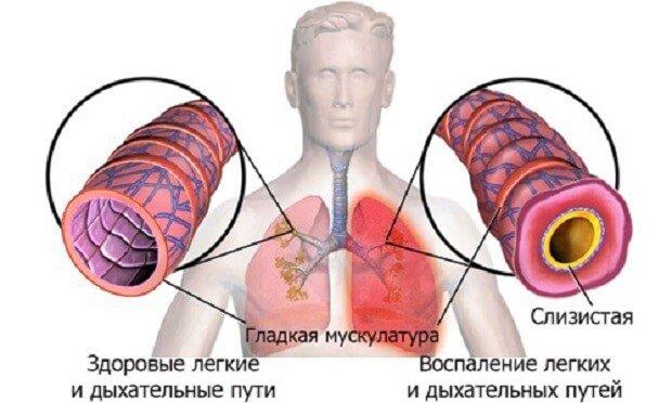 Состояние дыхательных путей