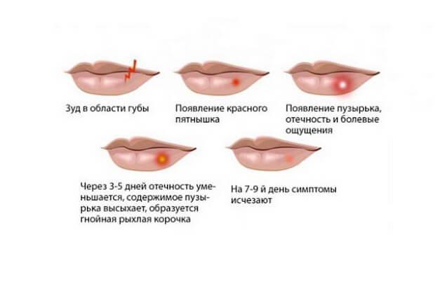 Динамика герпетической сыпи