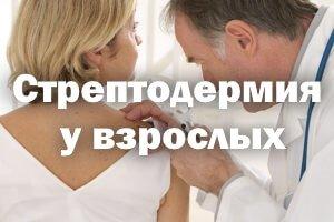 Лечение стрептодермии у взрослых