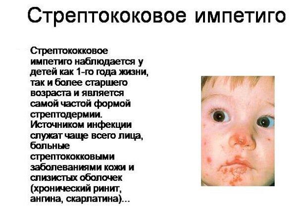 Импетиго у ребенка