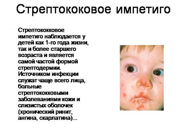 Стрептококовое импетиго у ребенка
