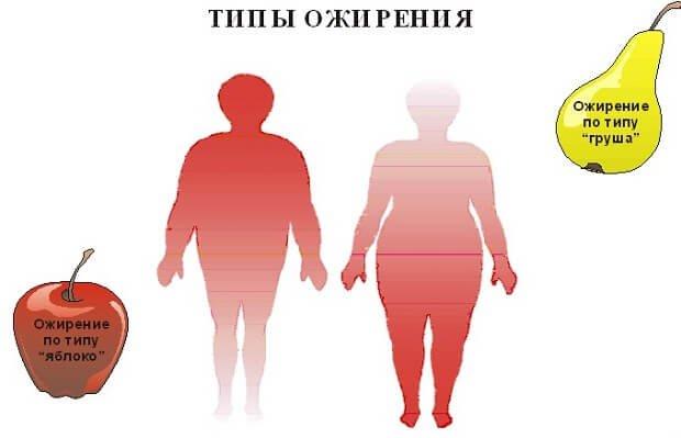 Типы отложения жира